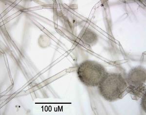 Aspergillus mikroskopski prikaz