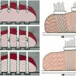 Šematski prikaz ubrizgavanja salamure u meso pod pritiskom (Metalquimia i Inject star – prospektni materijal)