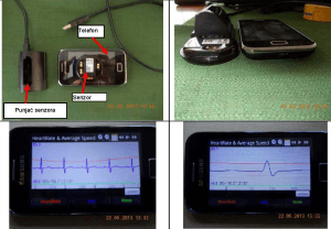 EKG sistem za praćenje zdravstvenog stanja pacijenta
