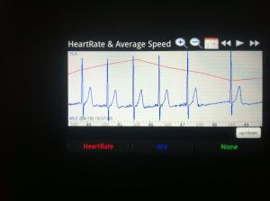 Kardiogram i otkucaj srca jednog pacijenta