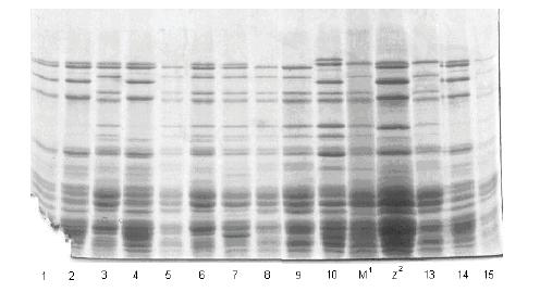 Prikaz HMW-GS na 5 pojedinačnih zrna uzoraka Marija BL 03, Liberta BL 03 i Liberta BL 04