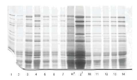 Prikaz HMW-GS na 5 pojedinačnih zrna uzoraka Liberta BL 04, Tina BL 03 i Tina T 03