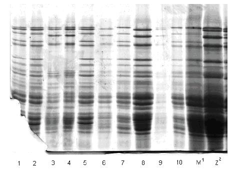 Prikaz HMW-GS na po 5 pojedinačnih zrna uzoraka Sana BL 03, Renesansa BL 03